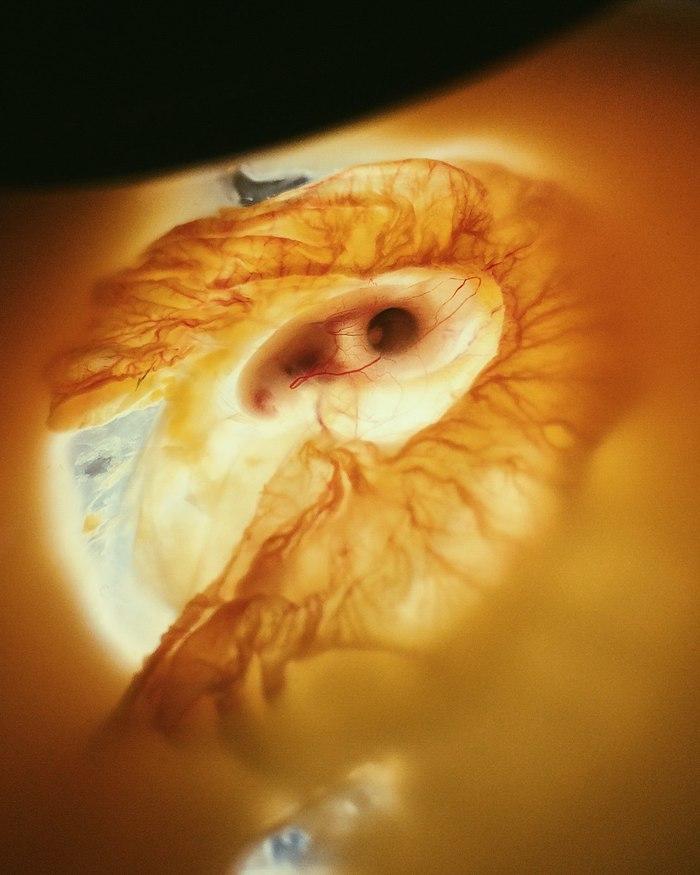 Зарождение жизни Биология, Фотография, Цыплята, Яйца, Зародыш, Эмбрион