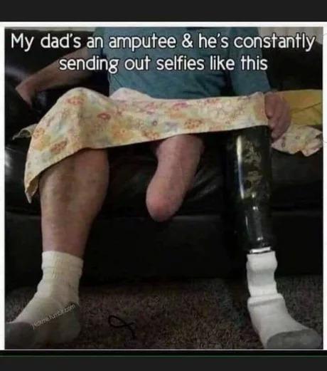 Мой отец инвалид (ампутация) и он постоянно присылает селфи типа такого