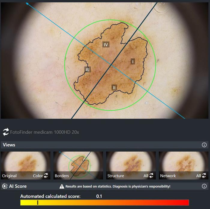 FotoFinder — цифровая дерматоскопия Fotofinder, Фотофайндер, Цифровая дерматоскопия, Увеличение, Интересное, Меланома, Рак кожи, Длиннопост