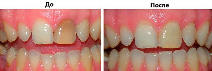 Стоматология. Сложное простыми словами №2 Отбеливание Стоматология, Медицина, Зубы, Длиннопост