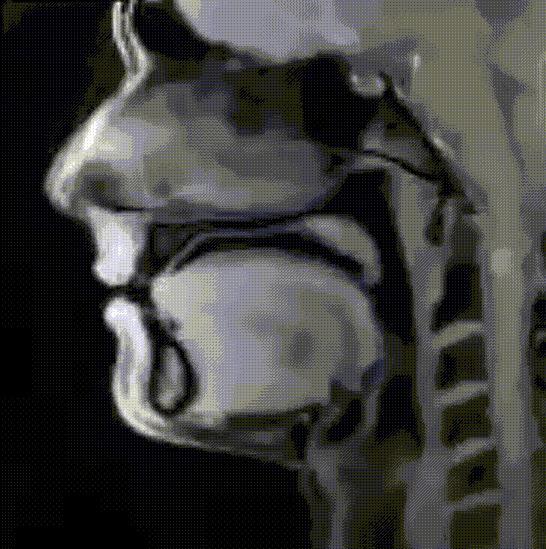 МРТ головы во время разговора