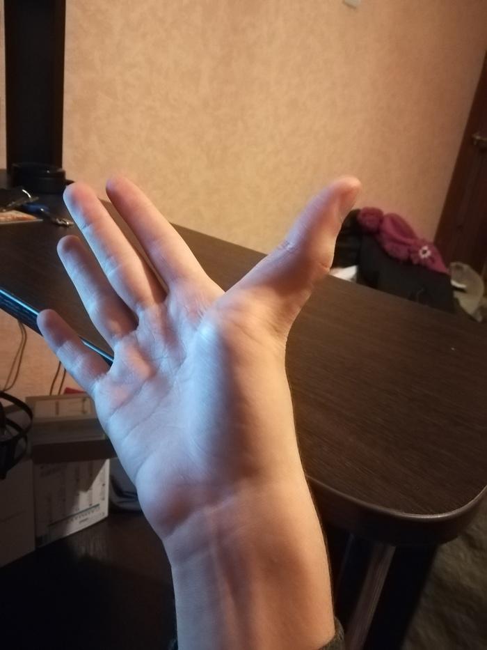 Что с моими руками? Кривые руки, Анатомия, Длиннопост