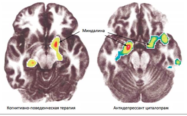 Как работает, и работает ли вообще разговорная психотерапия - 1 Психотерапия, Лига психотерапии, Психология, Доказательная медицина, Мозг, Длиннопост