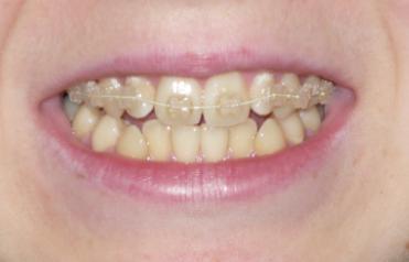Принцесса Кривозубка Зубы, Брекеты, Ортодонтия, Кривые зубы, Длиннопост