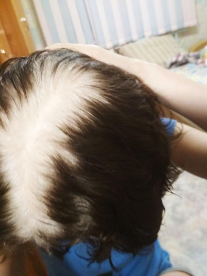 Еще раз про волосы и пневмонию Рак, Онкология, Вотриент, Пневмония, Лечение, Волосы, Седина, Длиннопост