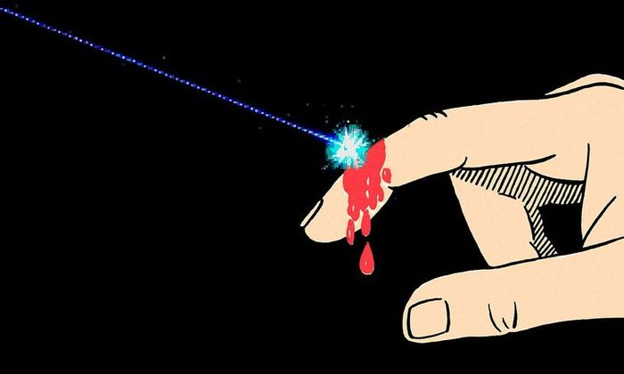 Ученые создают лазерный кожный регенератор Медицина, Лазер, Заживление, Длиннопост