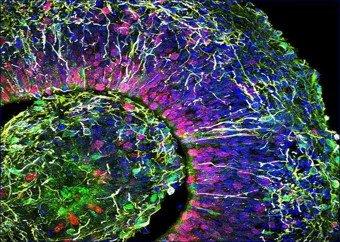 «Мини-мозги», выращенные в лаборатории, производят электрические импульсы, похожие на импульсы недоношенных детей Наука, Нейрология, Статья, Длиннопост