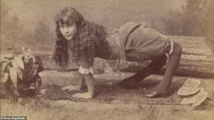 Участники 'фрик шоу' 100 лет назад Люди, Викторианская эпоха, Генетические заболевания, Аномалия, Длиннопост