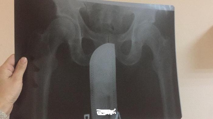 Что это? Рентген, Инородное тело