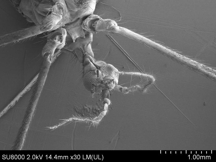 deshevie-foto-polovogo-chlena-pod-mikroskopom-devushki-otkrivayut