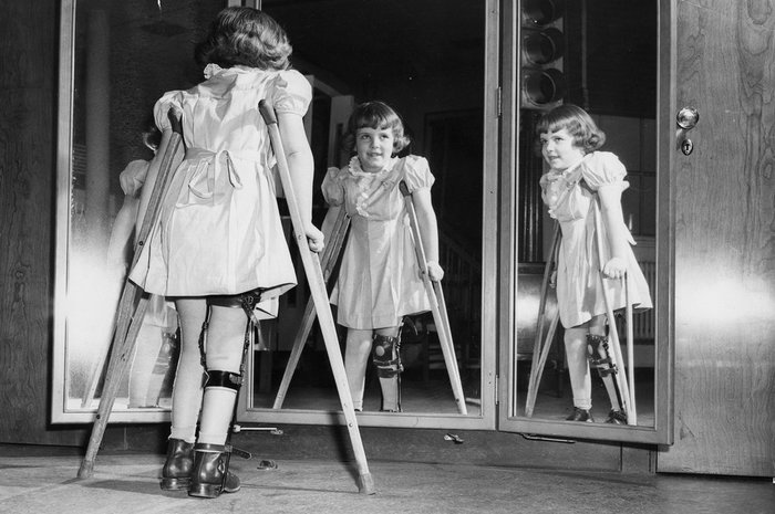 История детских кошмаров - полиомиелит. История, Медицина, Болезнь, Scientaevulgaris, Вирус, Полиомиелит, Длиннопост
