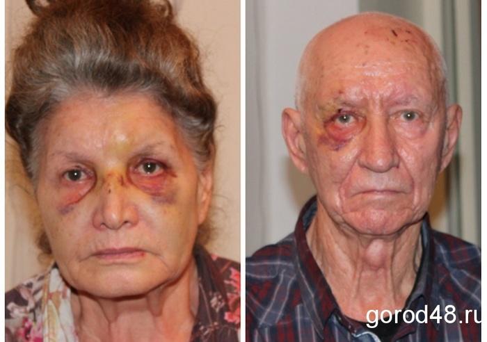 34-летний «служивший в Чечне» мужчина в кровь избивает престарелых соседей, грозя «ушатать их насмерть». Липецк, Бездействие полиции, Пенсионеры, Избиение, Длиннопост, Негатив