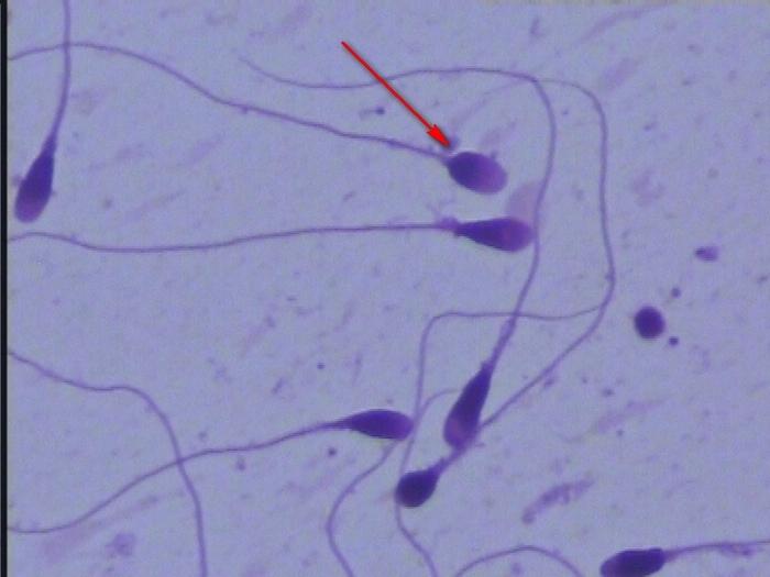 Спермограмма: когда, зачем и почему. Спермограмма, Сперматозоиды, Медицина, Анализ, Гифка, Длиннопост