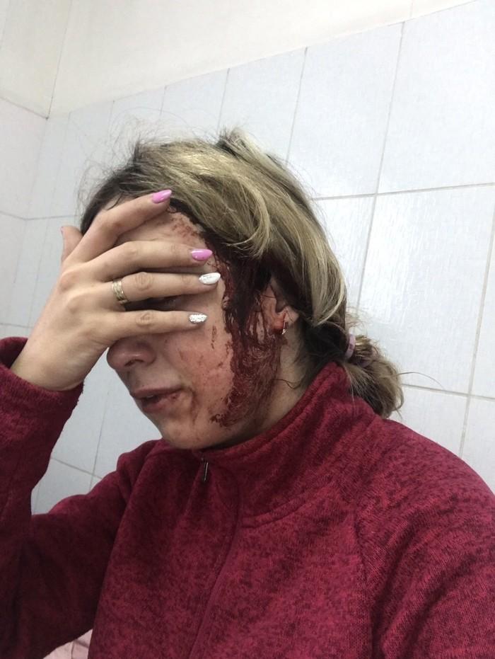Неадекватная автоледь избила женщину с ребенком на руках. Неадекват, Нижний Новгород, Пьяный водитель, Без рейтинга, Длиннопост