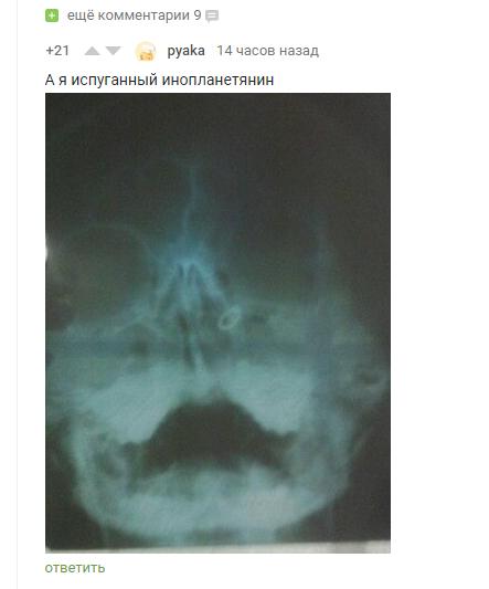 Действительно Скриншот, Комментарии, Комментарии на Пикабу, МРТ, Длиннопост