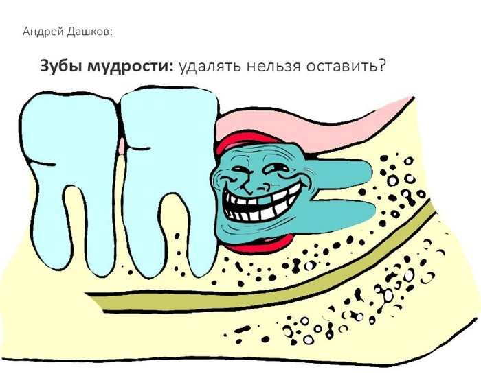 Зубы мудрости: удалить нельзя оставить Стоматология, Удаление зубов, Зубы, Зуб мудрости, Хирургия полости рта, Длиннопост, Врачи, Хирург