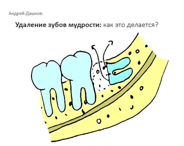 Удаление зубов мудрости. Как это делается? Стоматология, Зуб мудрости, Зубы, Удаление зубов мудрости, Хирургия полости рта, Врачи, Хирург, Медицина, Длиннопост