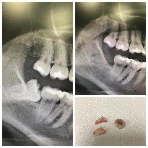 Удаление зубов мудрости. Как это делается? Стоматология, Зуб мудрости, Зубы, Удаление зубов мудрости, Хирургия, Врачи, Хирург, Медицина, Длиннопост