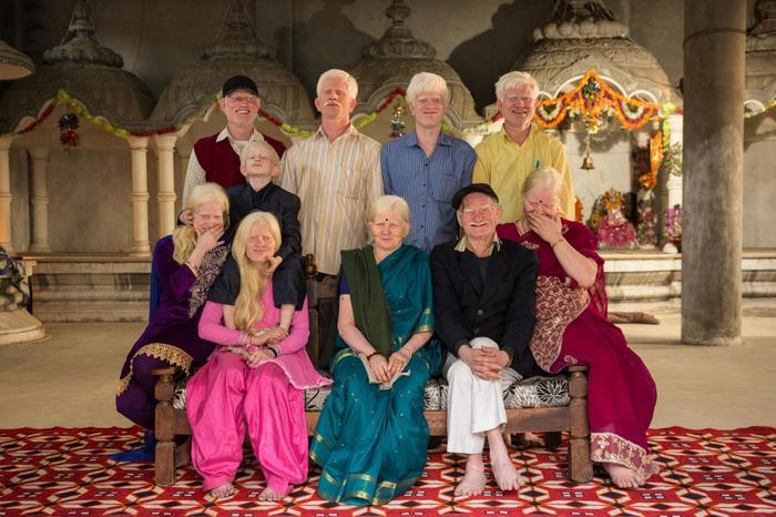 Семья альбиносов в Индии