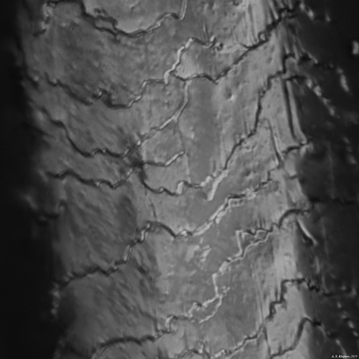Человеческий волос. Микроскоп, Волосы, Длиннопост