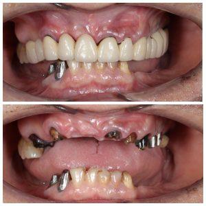 Имплантация при полном отсутствии зубов, как следствие несвоевременного обращения к стоматологу. Стоматология, Имплантаты, Врачи, Хирургия, Удаление зубов, Имплантация, Медицина, Пластика, Длиннопост