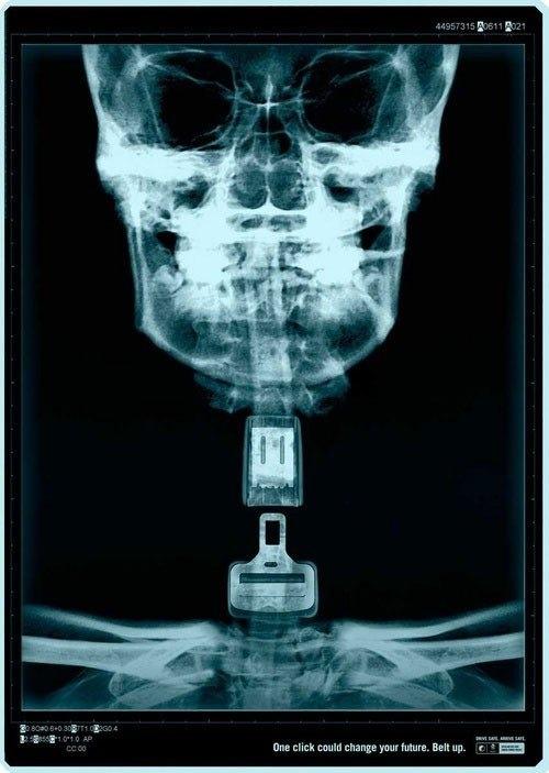 Один клик может изменить твоё будущее... Жизнь, Длиннопост, Социальная реклама, Безопасность, Рентгеновские снимки, Ремень безопасности