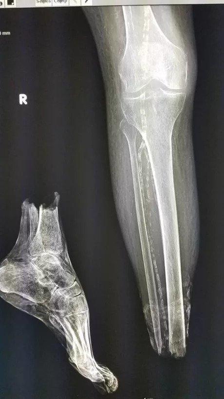 Будни рентгенологов
