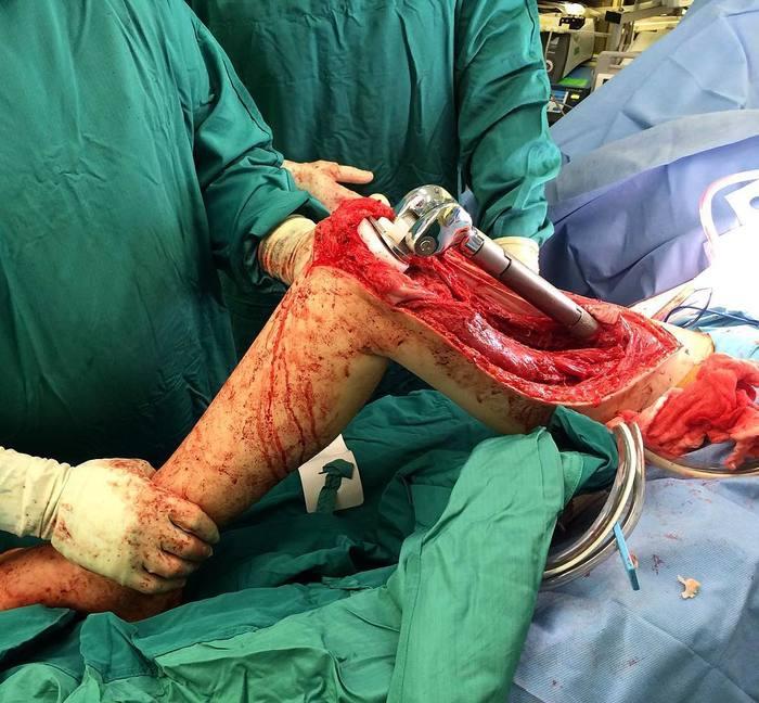 Протез бедренной кости Хирургия, Рак, Медицина, Протез, Видео, Жесть, Операция