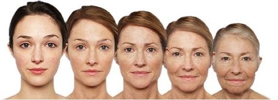 Эстетическая хирургия. Круговая подтяжка лица. Пластическая хирургия, Пластика лица, Пластическая операция, Красота, Медицина, Длиннопост