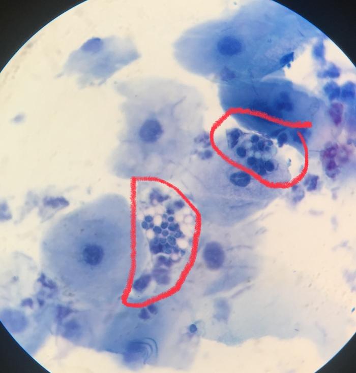 Лабораторная диагностика. Микроскопия. Микроскопия, Микроскоп, Лабораторная диагностика, Лаборатория, Анализ, Длиннопост