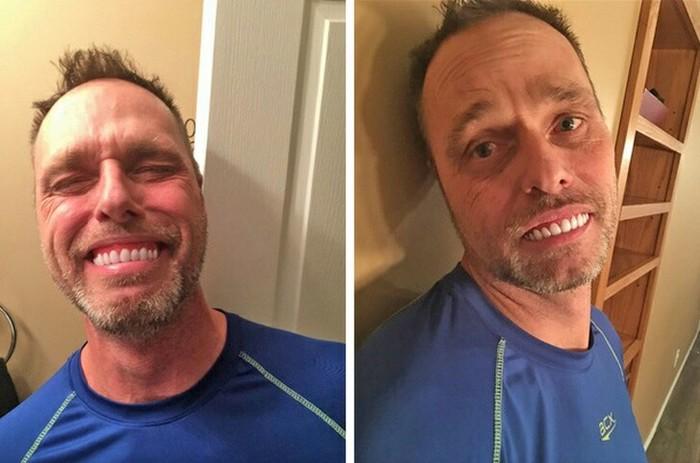 «Папа заказал себе поинтернету накладные зубы. Описание обещало улучшить улыбку. Ну, она действительно изменилась...»