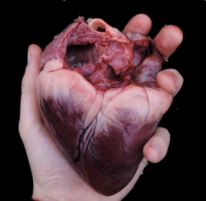Кардиохирургия Медицина, Кардиохирургия, Анестезиология, Популяризация, Сердце, Длиннопост