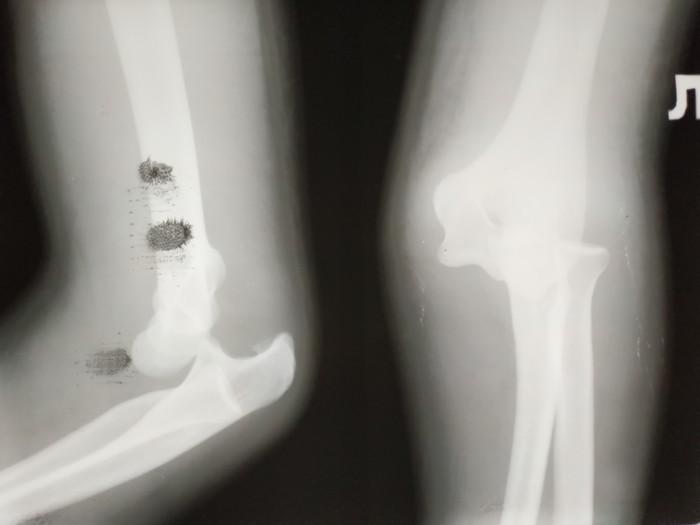 Вывих наглядно. Рентген, Рентгеновские снимки, Травма, Вывих, Больница