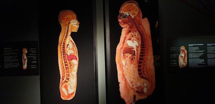 Разница между избыточным и нормальным весом