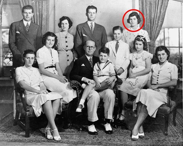 Розмари Кеннеди - дочь, мешавшая карьере сына. Розмари Кеннеди, Длиннопост, Лоботомия, Кеннеди, Психиатрия