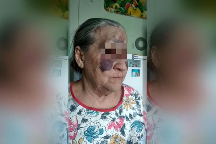 «Все лицо – сплошной синяк»: в Башкирии школьный завуч жестоко избила пенсионерку. Избиение, Драка, Негатив, Длиннопост