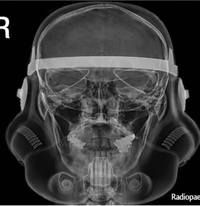 Рентген головы штурмовика из Звездных Войн Рентген, Star Wars, Фейк