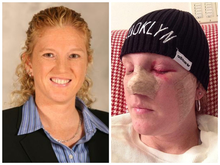 86 операций за 20 лет. Девушка показала, что стало с её кожей из-за солярия Болезнь, Загар, Длиннопост