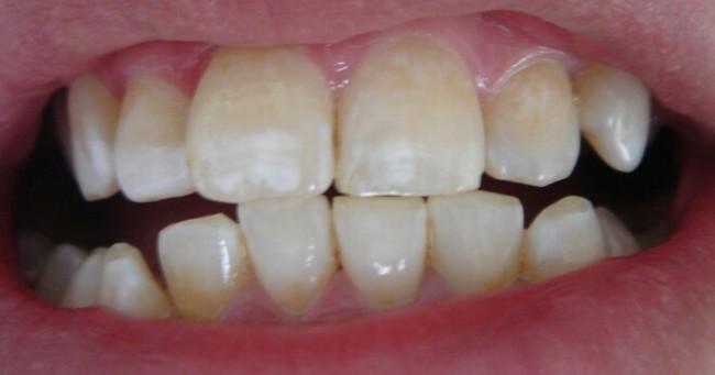 Основные причины разрушения наших зубов. Причины и факторы. Кариес, Стоматолог, Зубы, Длиннопост