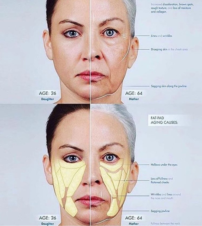 Как стареет наше лицо? Косметология, Старение, Анатомия, Медицина, Омоложение, Лицо, Длинный пост