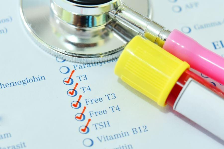 Ненужные лабораторные исследования [1]. Щитовидная железа