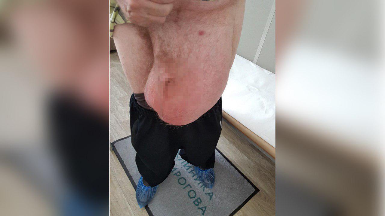 Паховя грыжа заниматься сексом